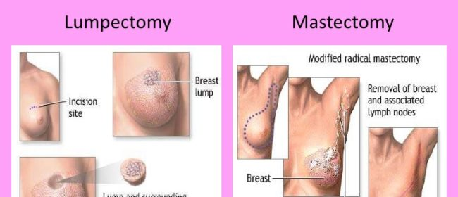 What Is Breast Cancer Lumpectomy?