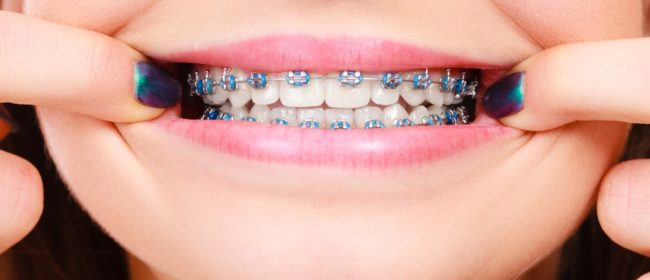 5 Things To Expect After You Get Braces